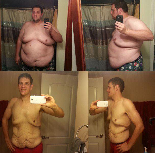 до и после похудения на 100кг